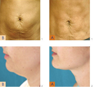 Laser Liposuction Smartlipo In Germantown Md Ultima