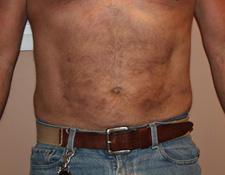smaller belly