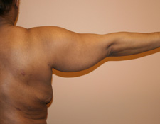 fat hanging from the upper arms