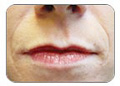 mouth with lines or parenthesis around it