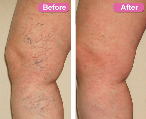 spider veins on thighs